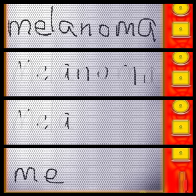 """from """"melanoma tunnel vision""""….back to me"""